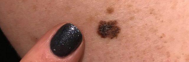 Stacey Waidley melanoma mole photo