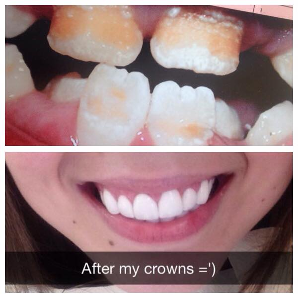 a picture showing the author's teeth before and after crowns were put in