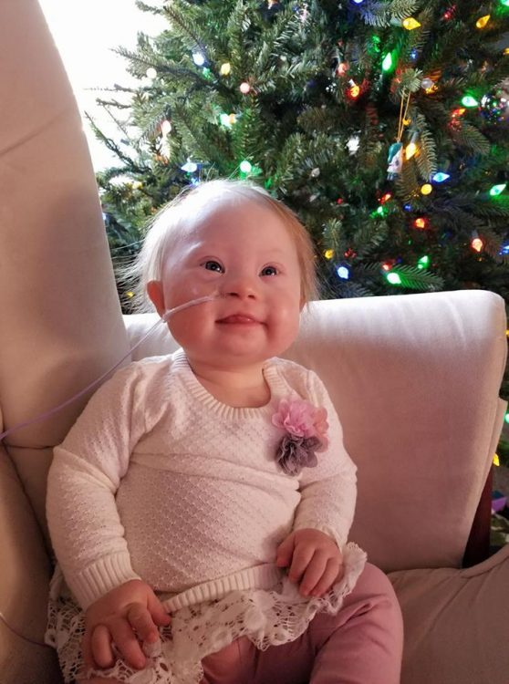 Baby with Down syndrome sitting on a pale pink sofa chair, she wear a white shirt and has a feeding tube in her nose