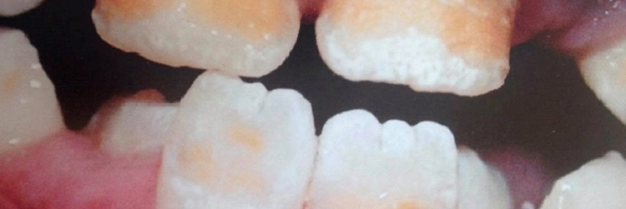 Photo of the author's teeth before crowns