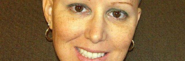 breast cancer survivor with bald head