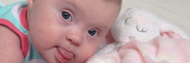 Baby girls with Down syndrome laying on her stomach, close up, looking a camera and her tongue is sticking out