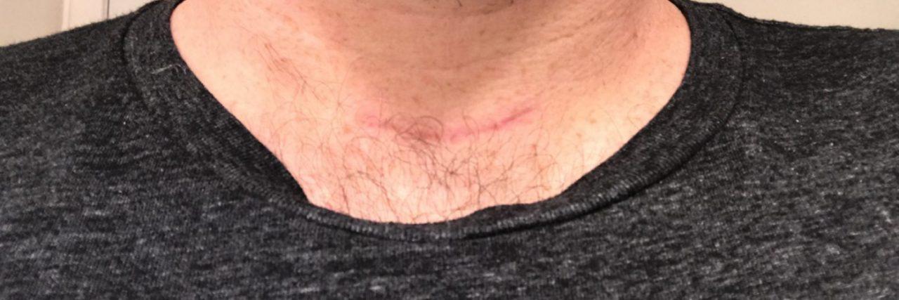 Ryan Buckley thyroid cancer neck