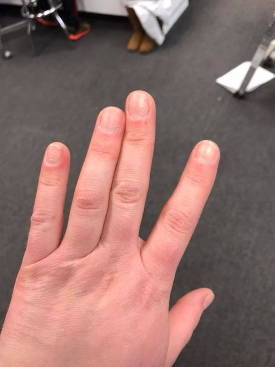 hand with two fingers stuck in position next to each other