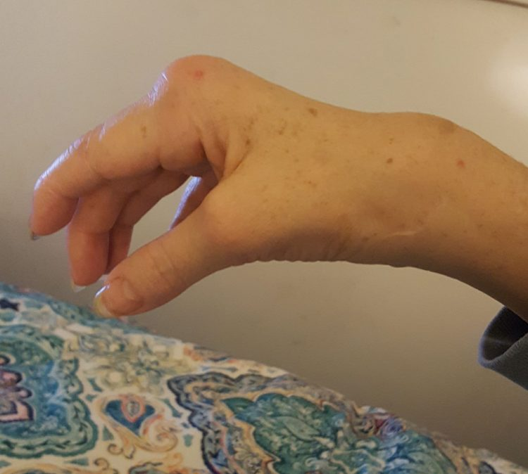 hand with large bump on knuckle
