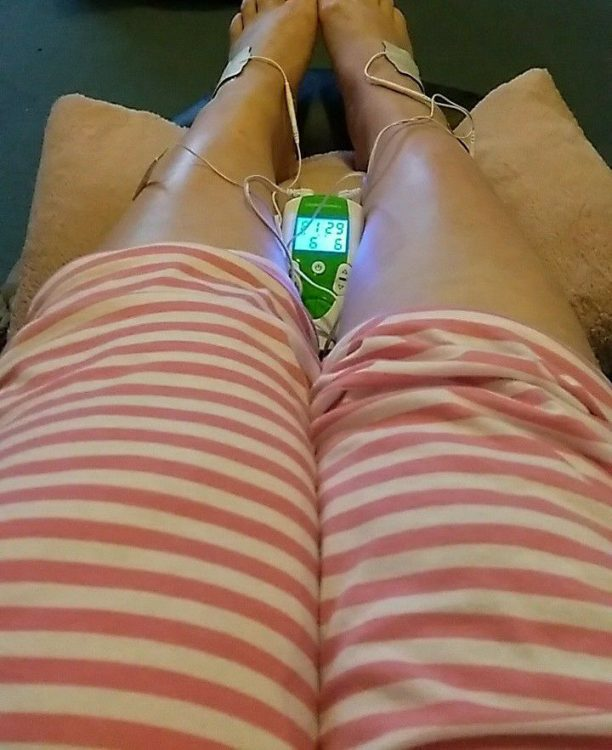 woman's legs with tens machine on ankles