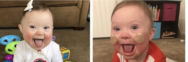 Photo collage. 1. Post open-heart surgery. 2. Smiling baby sitting on floor and tongue out. 3. Smiling baby with stickers for ng-tube on cheeks.