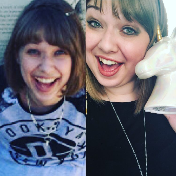 side by side photos of the author before and after prednisone