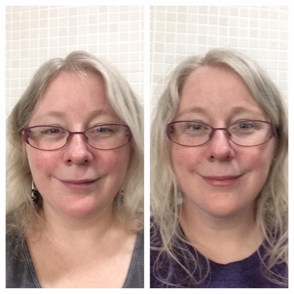 side by side comparison of a woman's face over time