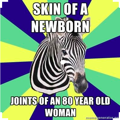 zebra meme with text skin of a newborn, joints of an 80 year old woman