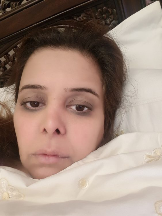 woman's face lying in bed