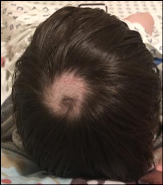 high school son trichotillomania bald patch