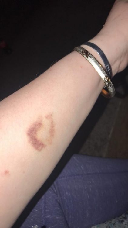 bruise on arm