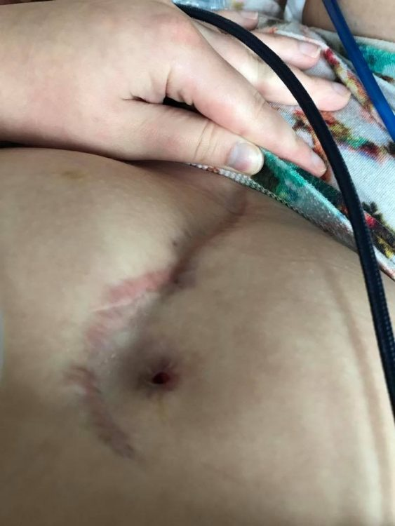 scar on woman's stomach