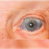 Man's eyes with blue tint