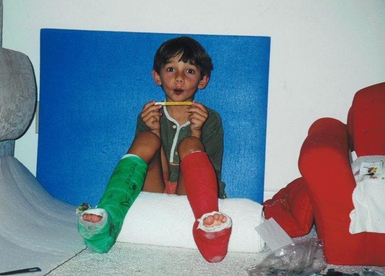 the author's son wearing two different leg casts