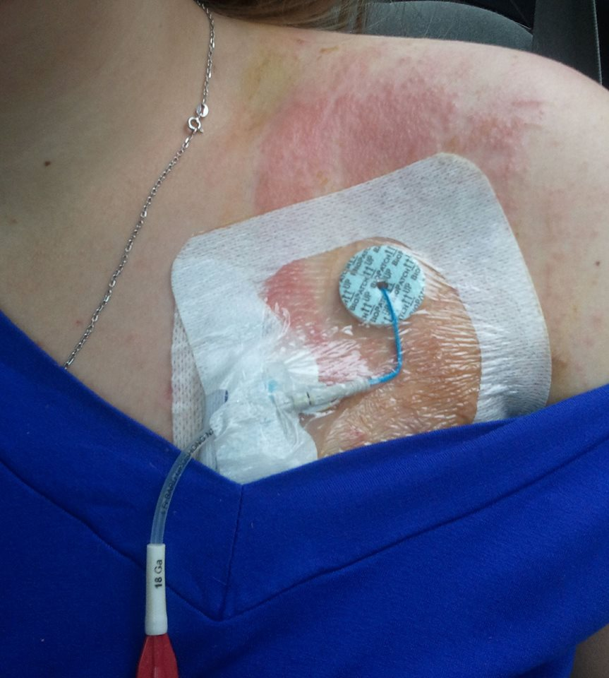 woman with a rash on her shoulder where her PICC line and wound dressing are