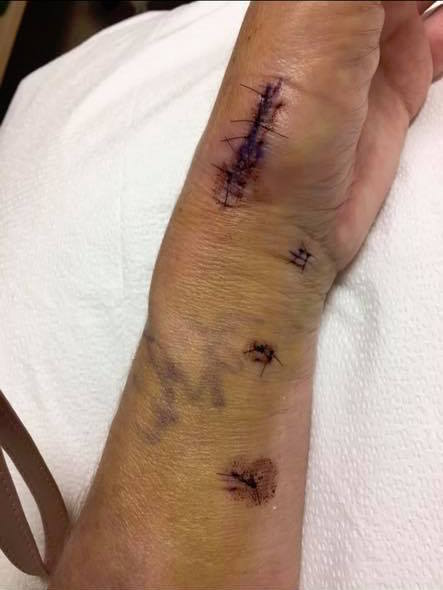 scars and bruising on a woman's skin after surgery
