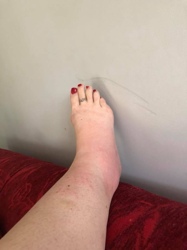 a woman's swollen and red ankle and foot