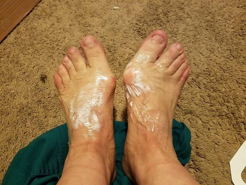 woman's feet covered in lidocaine