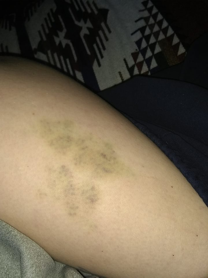 green-ish bruises on a woman's leg