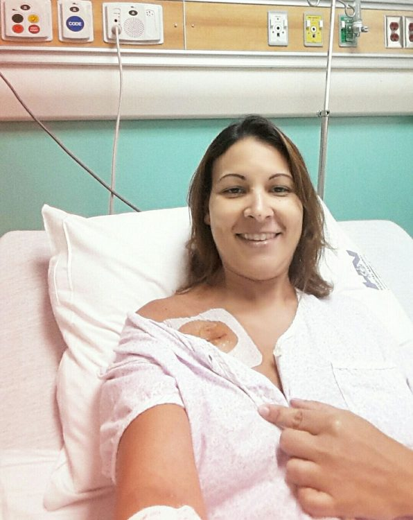 woman in hospital showing pacemaker incision