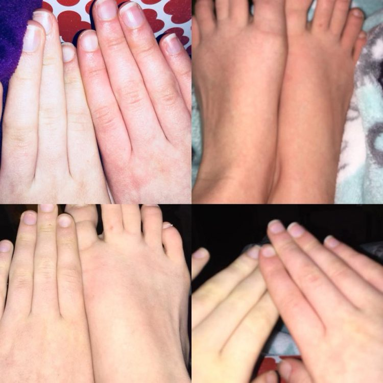 hands and feet showing redness due to blood pooling