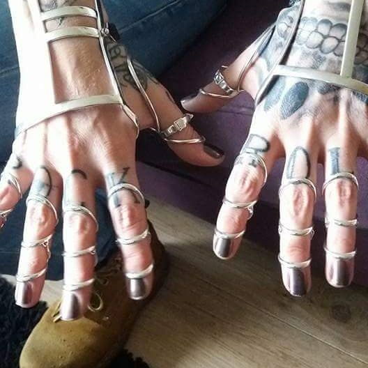 Angela's hands with wrist and finger splints
