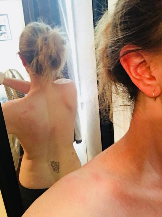 woman showing back in mirror