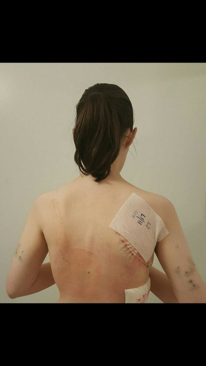 woman's back with bandage on shoulder