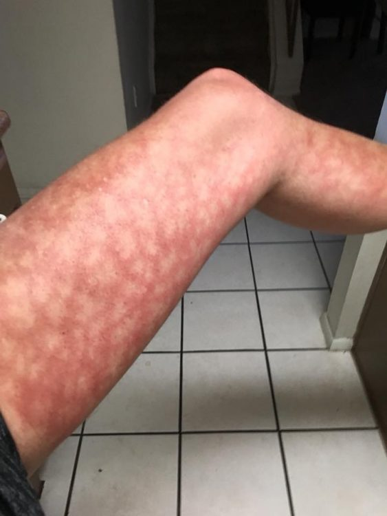 The allergic reaction on Jay's leg after exposure to the sun