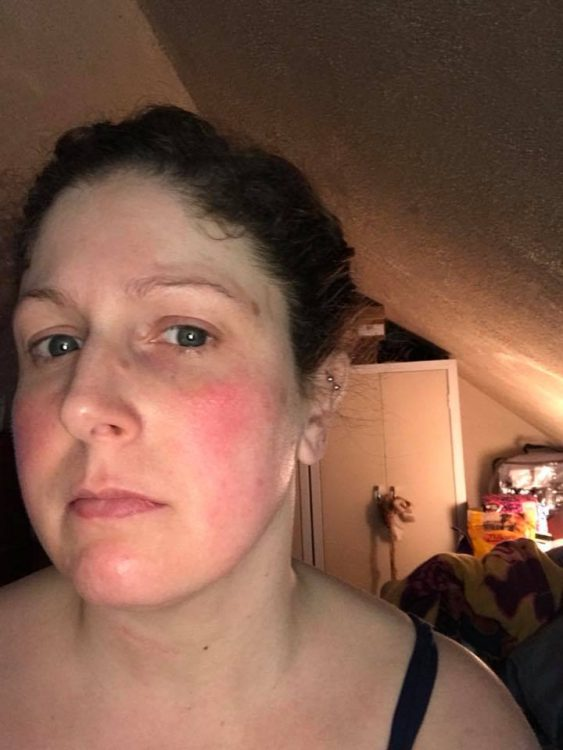 woman with flushed face