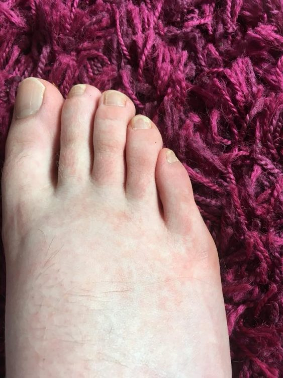 foot with red rash on toes