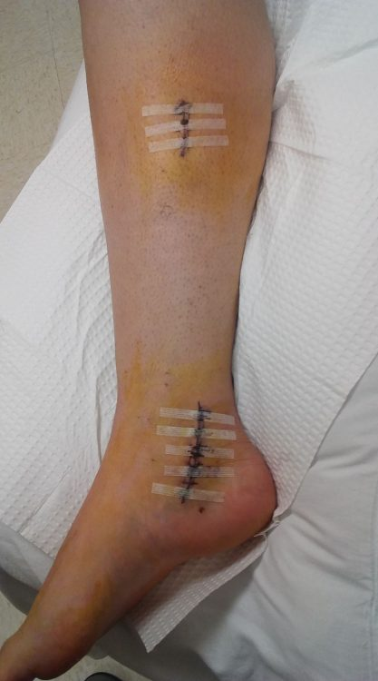 Abbie's surgery scars on her calf and ankle