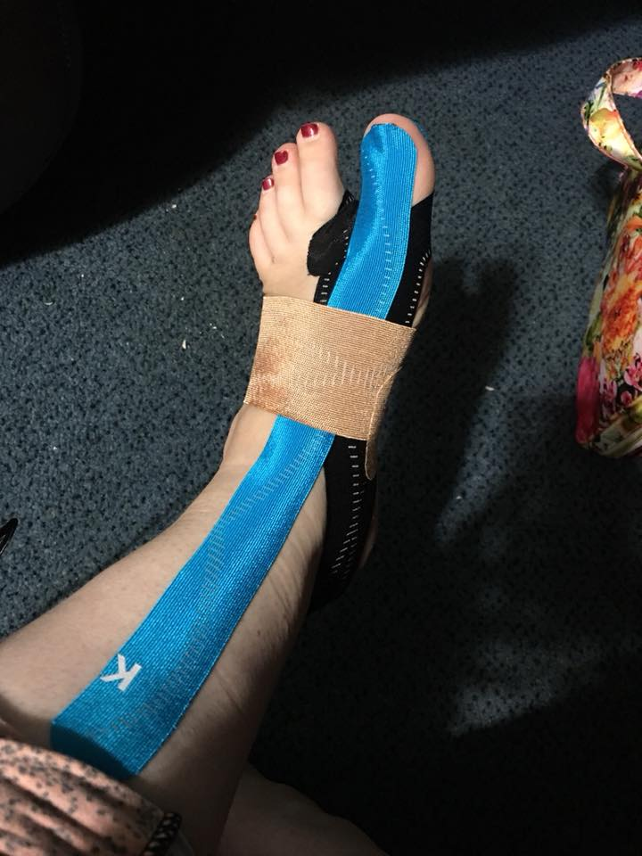 woman's foot wrapped with KT tape