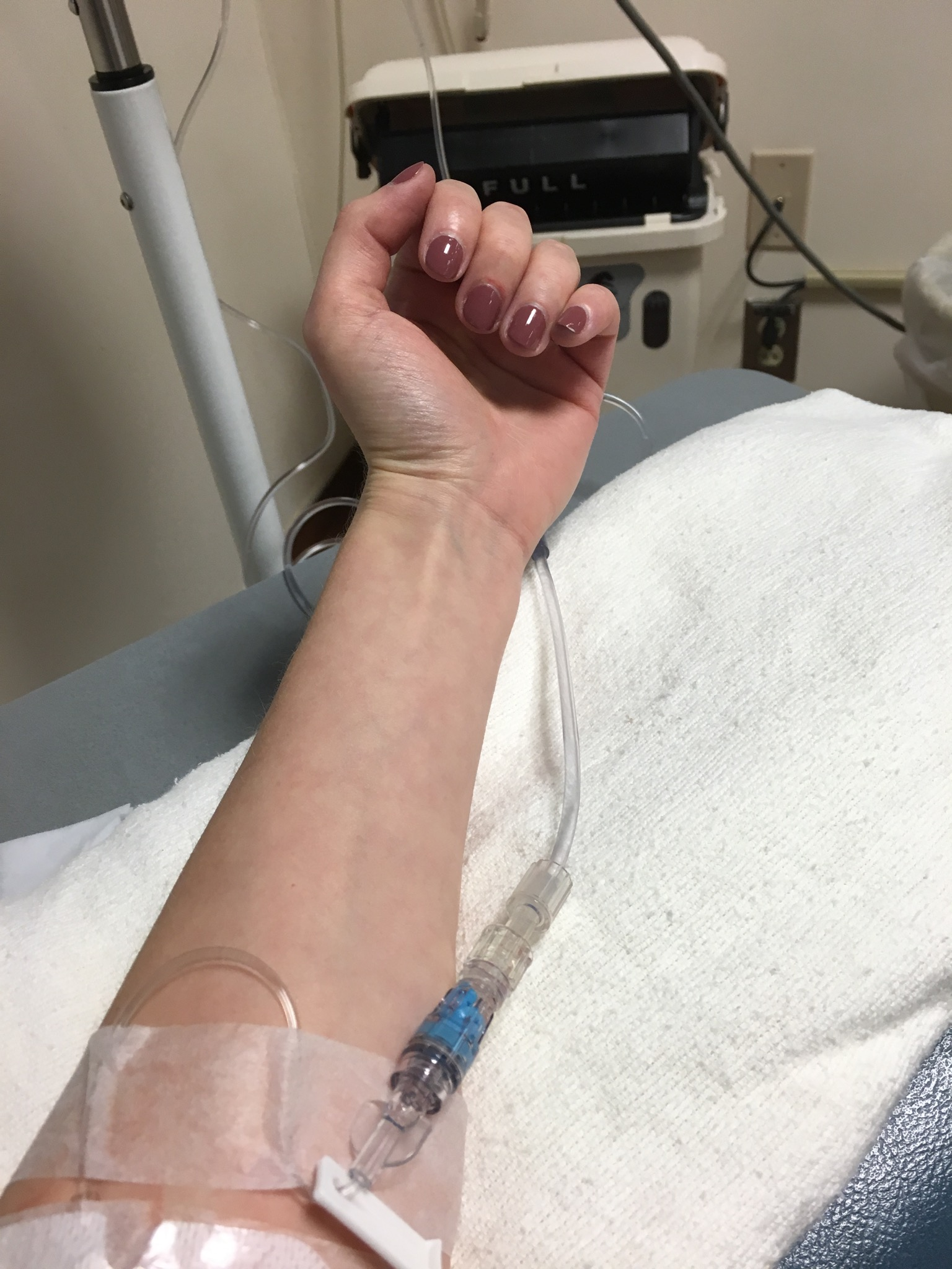 A picture of the writer's arm with an IV in it.