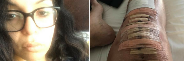 woman wearing glasses taking a selfie, and photo of stitches and bandages across a woman's knee after surgery