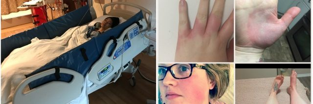 girl in hospital bed and collage of hands and face with red rash