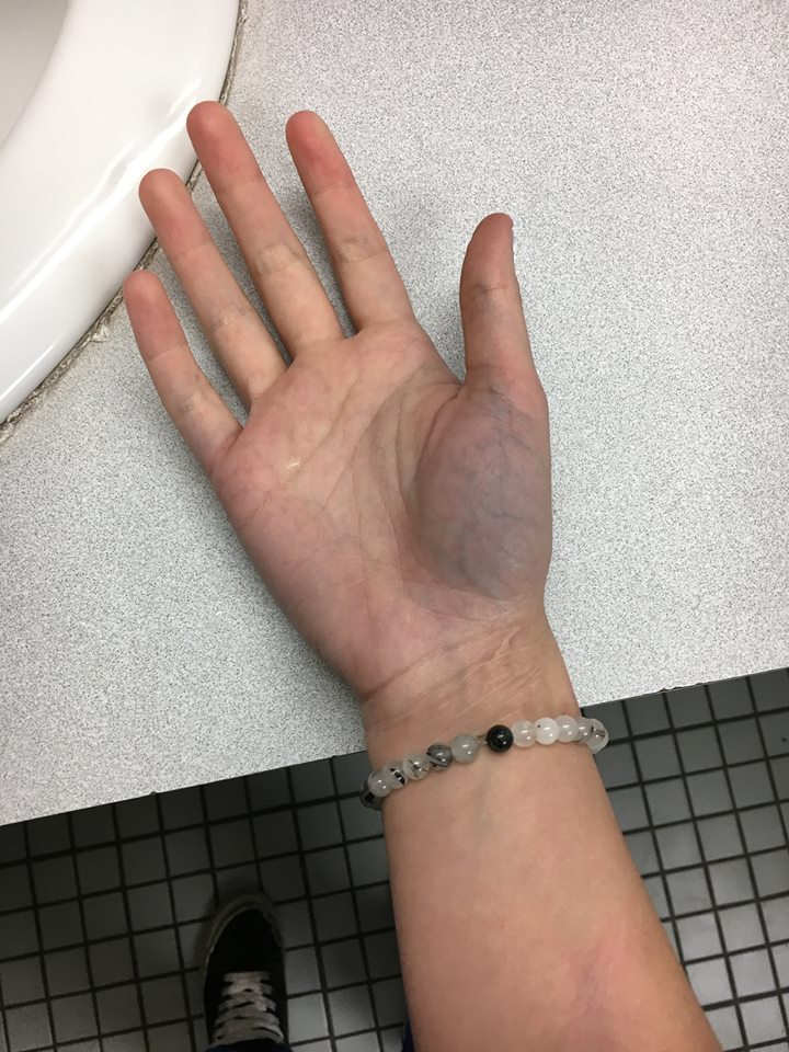 woman's hand that has turned partly purple underneath her thumb