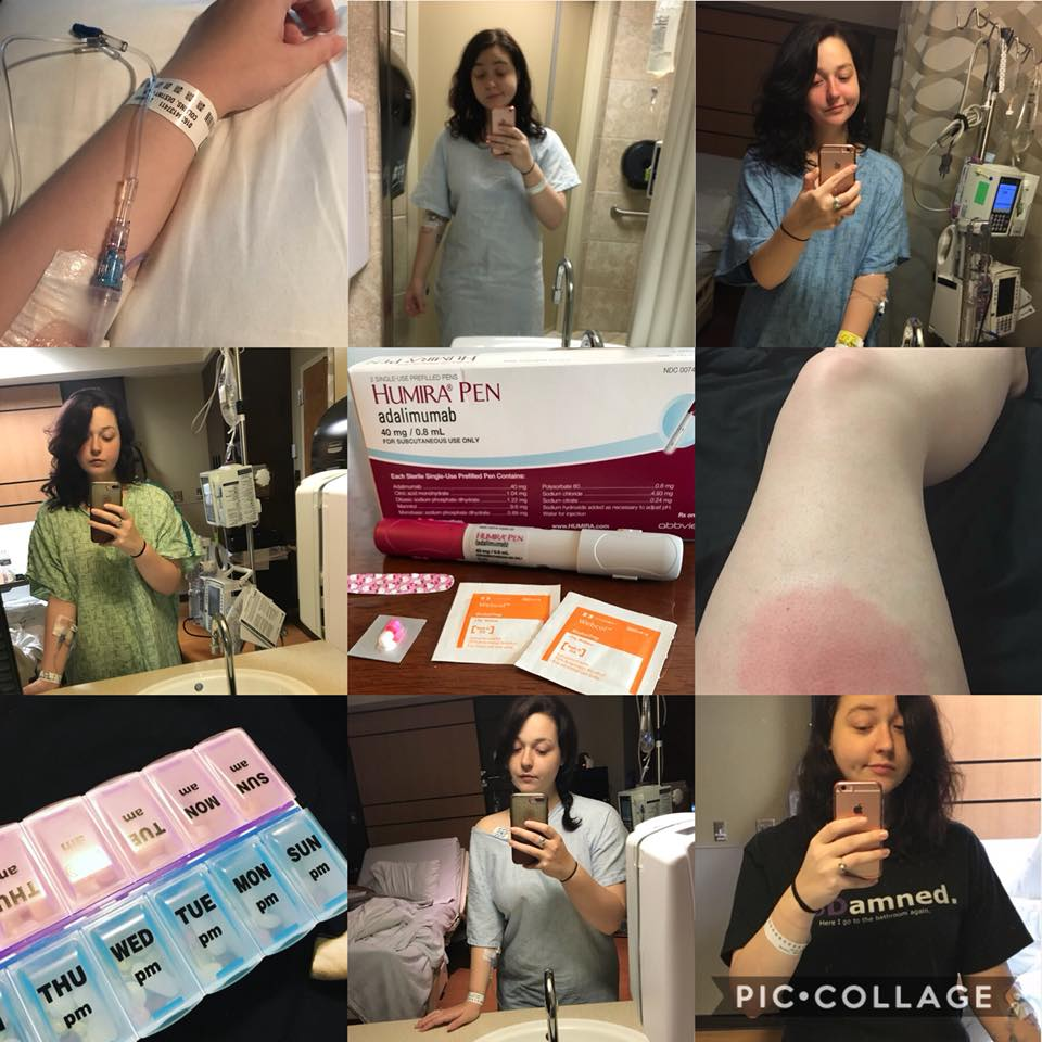 collage of photos of woman's life with autoimmune disease