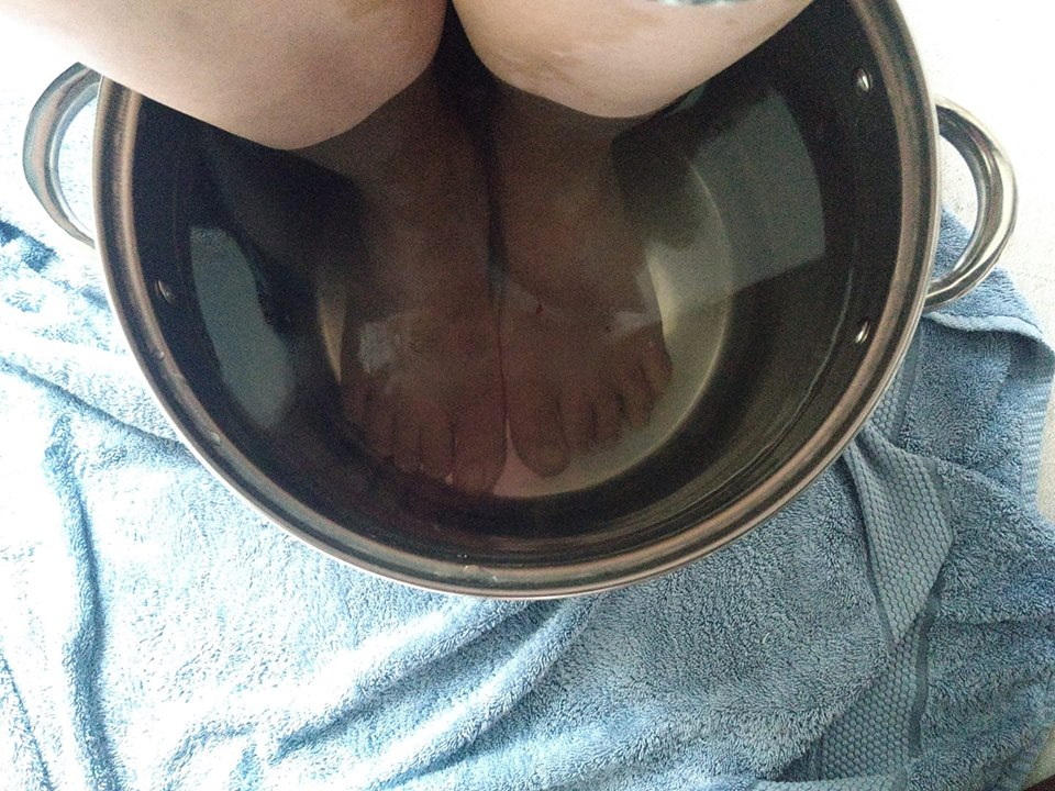 woman icing her feet in a bucket of cold water