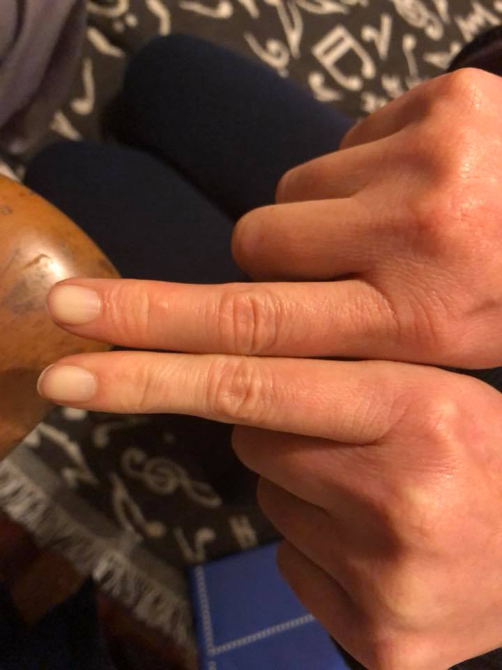 woman's swollen fingers