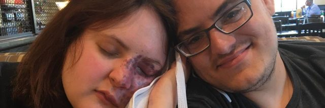 A photo of Crystal and her fiance, as Crystal leans on him while holding an icepack to her face.