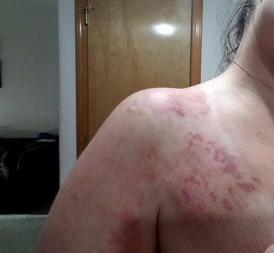 red rash on a woman's shoulder