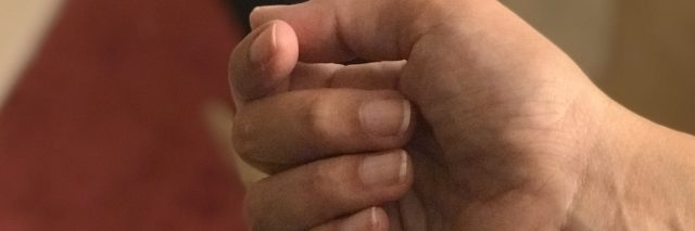 A picture of the writer's right hand, showing how much she can open it due to her MS.