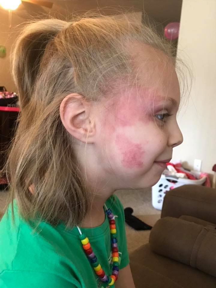 A picture of a young girl, turned away from the camera to show her birthmark on her cheek.