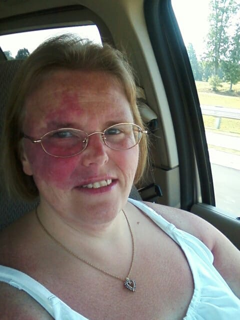 A selfie of a woman with a birthmark on her forehead and right cheek.