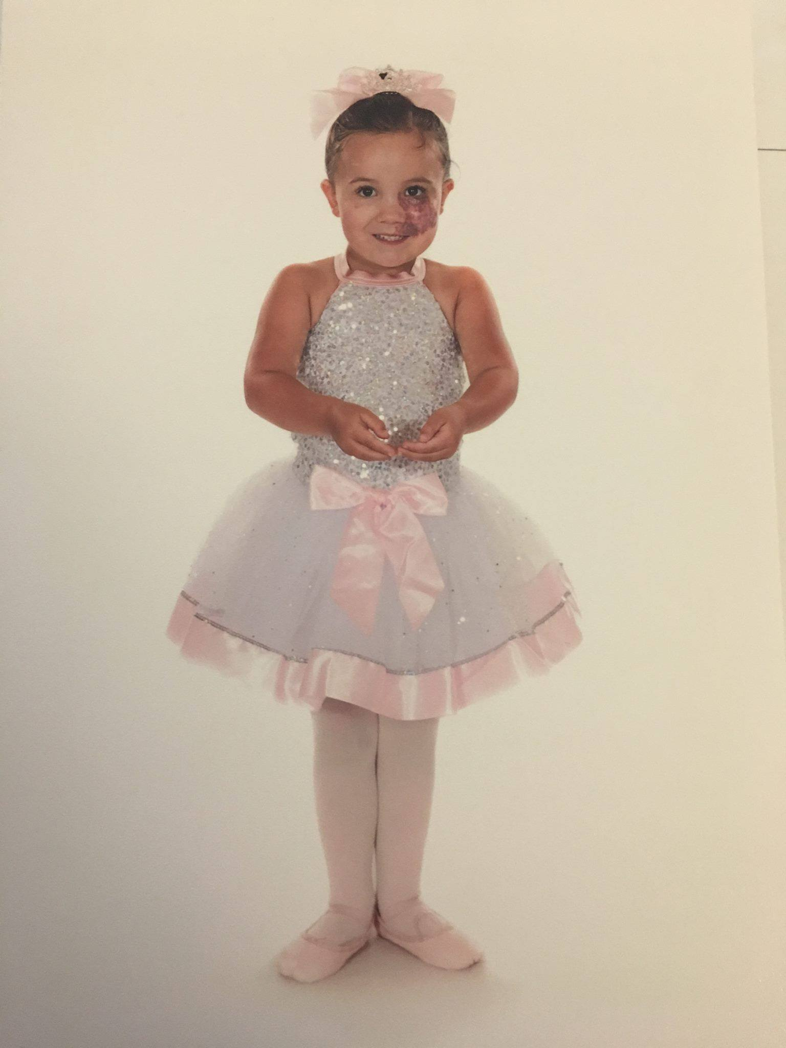 A little girl in her ballerina outfit, around the age of 4, with a birthmark on her cheek.