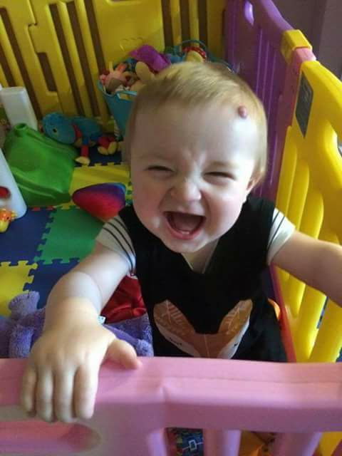 A picture of a baby boy smiling in a play pen, with a hemangioma on his forehead.