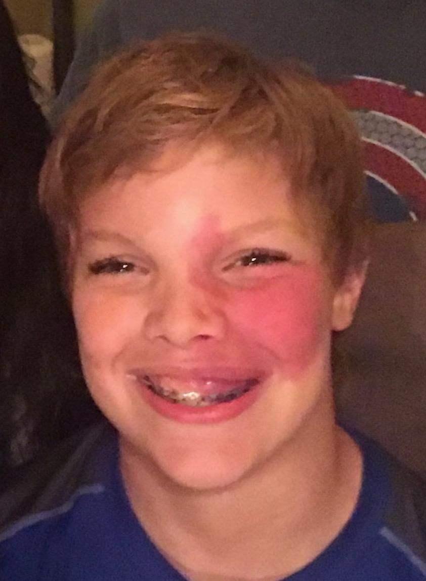A boy smiling at a camera, a birthmark on his cheek.